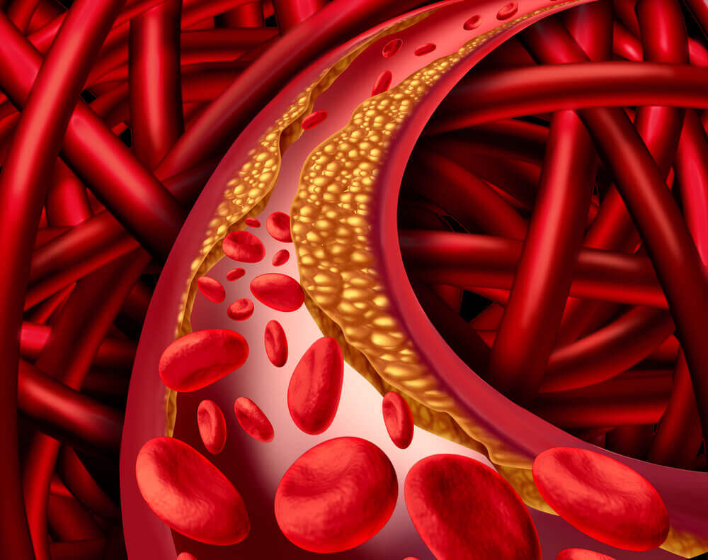 مستويات الكوليسترول