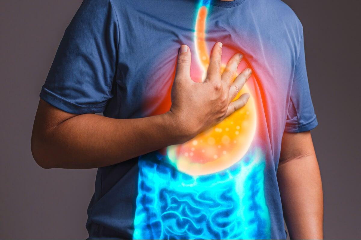 الارتجاع المعدي المريئي للعلاج بسينيتابرايد.