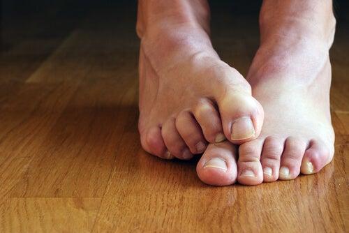 محاربة الفطريات على الأقدام والأظافر بطريقة طبيعية.