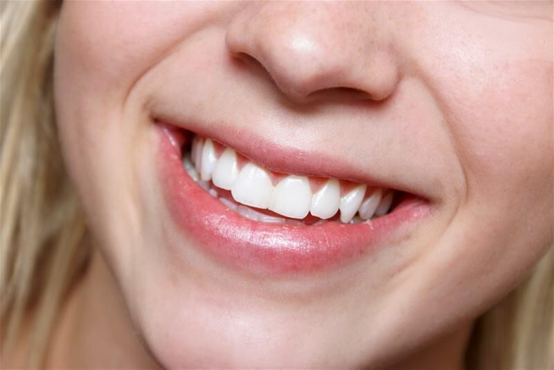 الفحم النشط كمبيض للأسنان