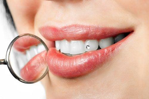العلاجات الحديثة ، تقويم الأسنان اللساني وغير المبني