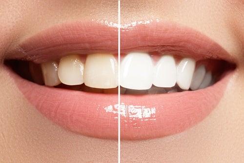 يساعدنا المكياج الصحيح على إظهار ابتسامة تحسد عليها.